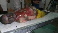 في حادثة هي الأولى من نوعها .. سجين في مركزي عدن ينتحر حرقاً