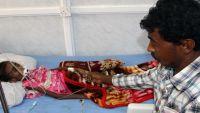 كاتب بريطاني: ابن سلمان يبذر وأطفال اليمن يموتون بالقنابل