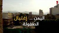 الطفولة في اليمن .. اغتيال مبكر ومعاناة مستمرة (فيديو خاص)