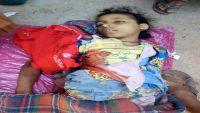 تعز.. مقتل أربعة مدنيين بينهم طفلان وامرأة بقنص وقصف المليشيا للأحياء السكنية