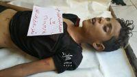مقتل طفل برصاص قناصة مليشيا الحوثي بتعز