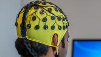 صدمات كهربائية خفيفة لعلاج القلق والاكتئاب