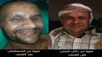 مختطف لدى الحوثيين فقد عينيه بغارة للتحالف يناشد إطلاق سراحه