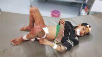 الجوف.. إصابة أربعة أطفال بقصف للحوثيين استهدف نازحين (صور)