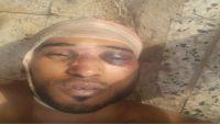 وفاة معتقل تحت التعذيب في سجون الحزام الأمني بعدن