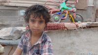 6 آلاف مريض بالجوع في صنعاء