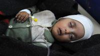 256 حالة مشتبه بإصابتها بالكوليرا في صنعاء