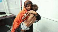 يونيسف: أطفال اليمن يعيشون في جحيم .. و30 ألف طفل يموتون كل عام