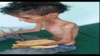 """المجاعة تهدد أطفال اليمن .. الطفل """"غازي """" نموذج آخر على توسع المأساة"""