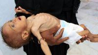 الغارديان: معاناة المدنيين في اليمن ليست أسوأ أزمة إنسانية بل جريمة