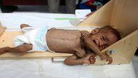 هولندا : الوضع في اليمن رهيب ومأساوي