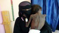 منظمات أممية: انعدام الأمن الغذائي في اليمن يؤثر على 20 مليون شخص