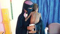 منظمة ألمانية تدعو لتحسين وصول المساعدات للمتضررين في اليمن