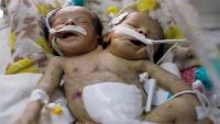 وفاة توأم برأسين ملتصقين بعد ولادتهما بأسبوعين في صنعاء