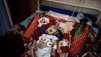 """مصور إيطالي يفوز بجائزة """"بوليتزر"""" لصور التقطها من حرب اليمن (ترجمة خاصة)"""