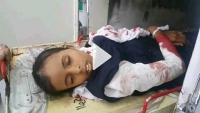 ضحايا أطفال في قصف للحوثيين بتعز