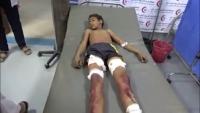 مقتل طفل وإصابة شقيقه بانفجار مقذوف في الحديدة