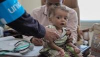 أنقذوا الأطفال: 440 ألف مصاب بالكوليرا خلال النصف الأول من العام الجاري