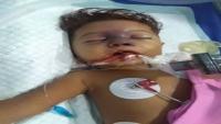 وفاة طفلة في الحديدة بسبب عجز والديها عن إسعافها