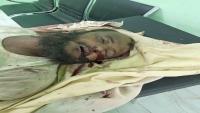 وفاة مواطن تحت التعذيب على أيدي قوات اللواء الأول عمالقة