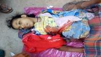 الأمم المتحدة: وفاة طفل تحت سن الخامسة كل 12 دقيقة باليمن