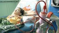 اليونيسف: 50 ألف إصابة بالثلاسيميا في اليمن