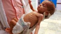 """أطفال اليمن """"يموتون كل ساعة"""".. أجساد هزيلة شاهدة على سنوات الدمار"""