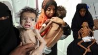 الصليب الأحمر: 66 بالمئة في اليمن لا يملكون الطعام
