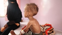 تحذير أممي من مجاعة وشيكة في اليمن