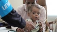 """""""الصحة العالمية"""" تعالج 18 ألف طفل يمني من سوء التغذية الحاد"""