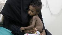 مسؤول أممي: 10 ملايين يمني على بعد خطوة من المجاعة