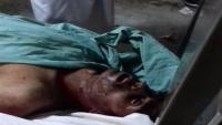 جماعة الحوثي بعمران تعذب مواطنا حتى الموت ومصير سبعة من أسرته مجهول