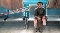 صورة لطفل يمني مبتور الساق حصلت على الثناء بحفل توزيع جوائز سيينا الدولية (ترجمة خاصة)