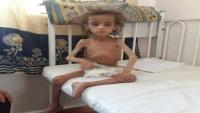 يونيسف: ملايين الأطفال باليمن يسيرون رويدا نحو أسوأ مجاعة