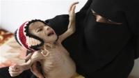 """الأمم المتحدة تحذر من """"أرقام قياسية"""" لمعدلات الجوع في اليمن"""