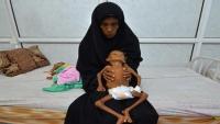 الأمم المتحدة: نصف سكان اليمن سيواجهون الجوع العام المقبل
